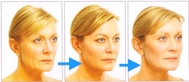 Круговая подтяжка кожи лица