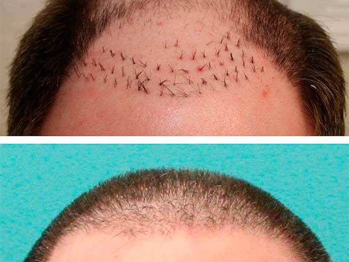 Трансплантация донорских волос