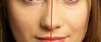Асиметрия лица