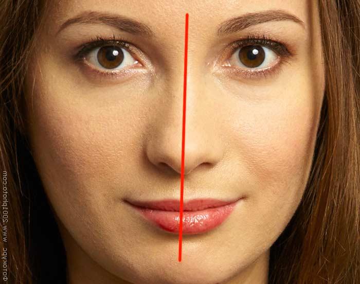 Ассиметрия лица