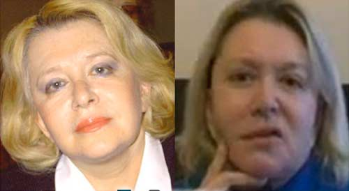 Алена Галич до и после