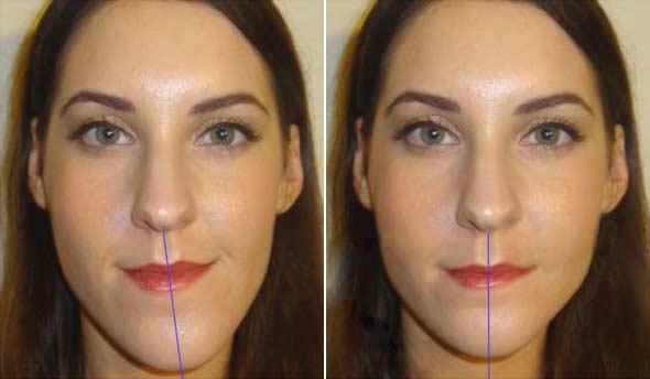 До и после исправления асиметрии лица