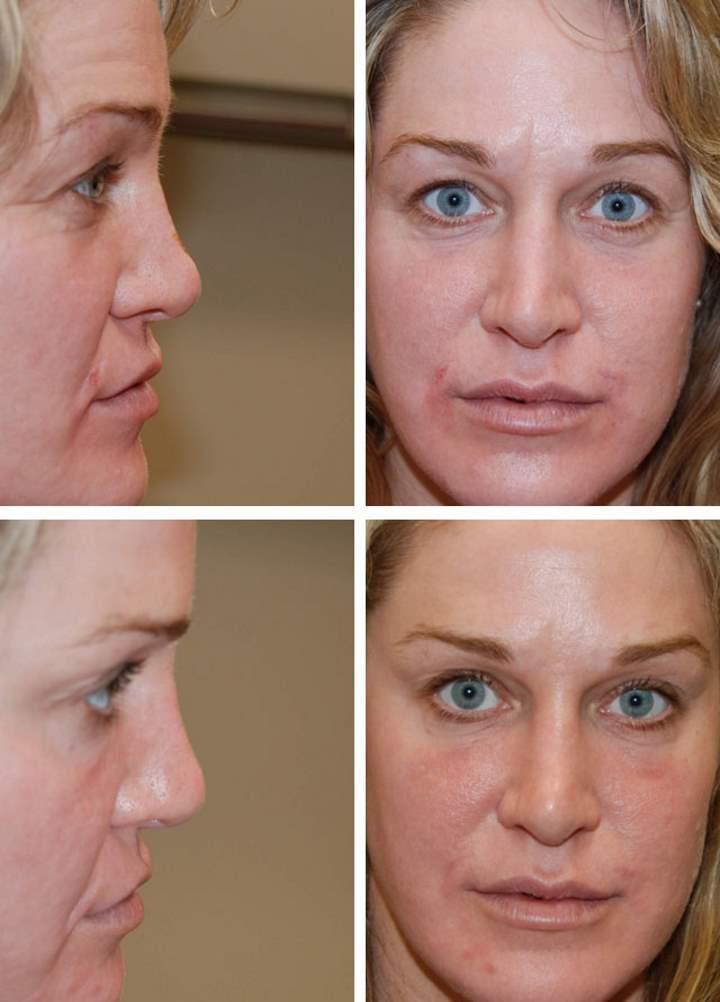 Изменение носа филерами
