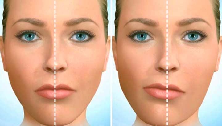Функциональный тип асиметрии лица