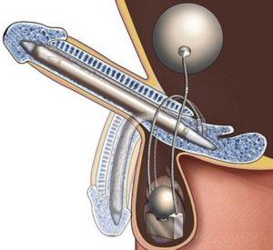 Разрез с имплантом полового члена