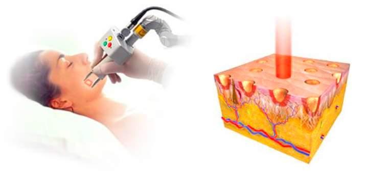 Принцип фракционной лазеротерапии