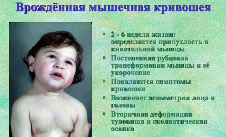 Врожденная причина ассиметрии лица