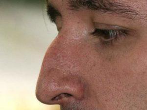 Мужчина с горбатым носом