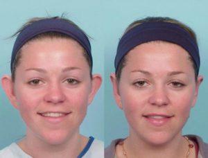 До и после операции на уши