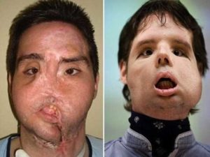 Фото после трансплантации лица