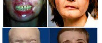 2 первых трансплантации лица