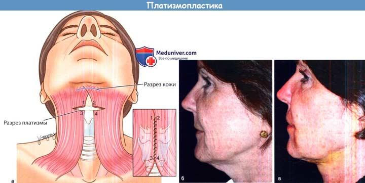 Платизмопластика шеи