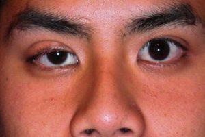 Один глаз больше