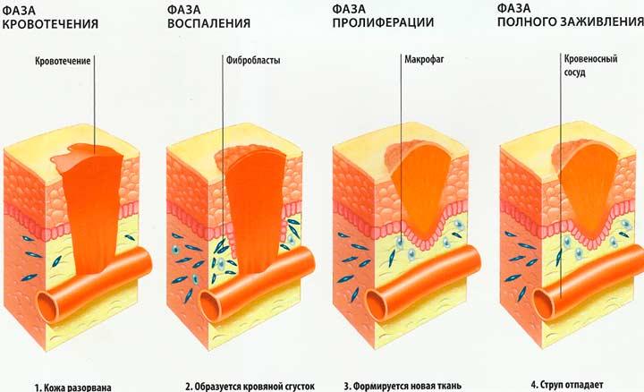 После повреждения кожных покровов происходит
