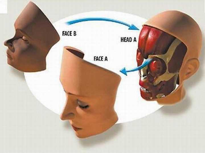 Рисунок трансплантации лица