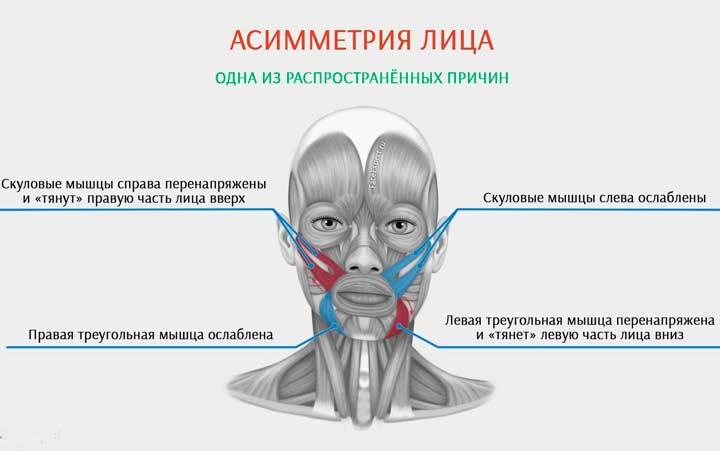 Причины асиметрии лица