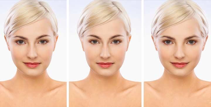 Симетрия и ассиметрия лица