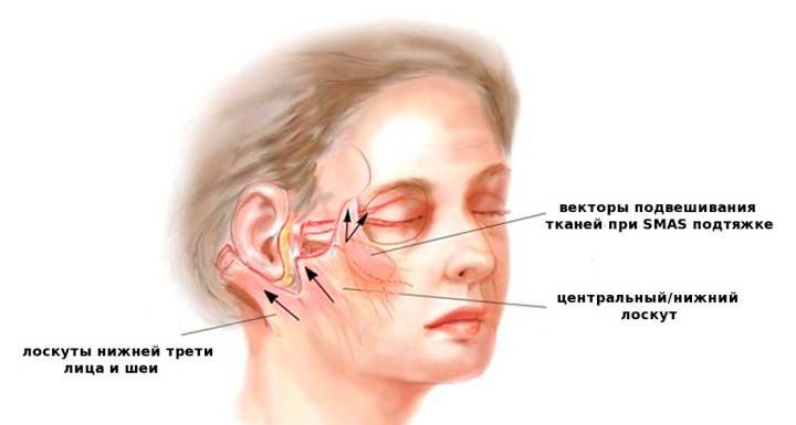 SMAS – подтяжка глубоких подкожных тканей