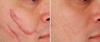 До и после воздействия на шрам