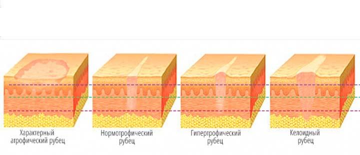 Существует несколько видов рубцов, которые в зависимости от количества соединительной ткани