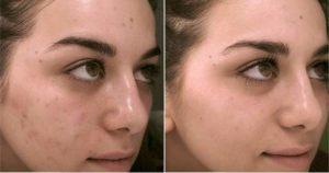 Фото до и после гликолевой кислоты