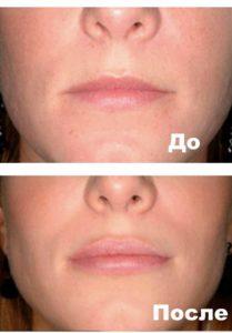 Фото 1 пациента до и после Плюреаля