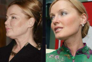 До и после операции Ларисы Вербицкой