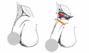 Надрезы связок при удлинении члена