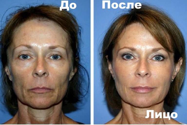 До и после липолифтинга лица