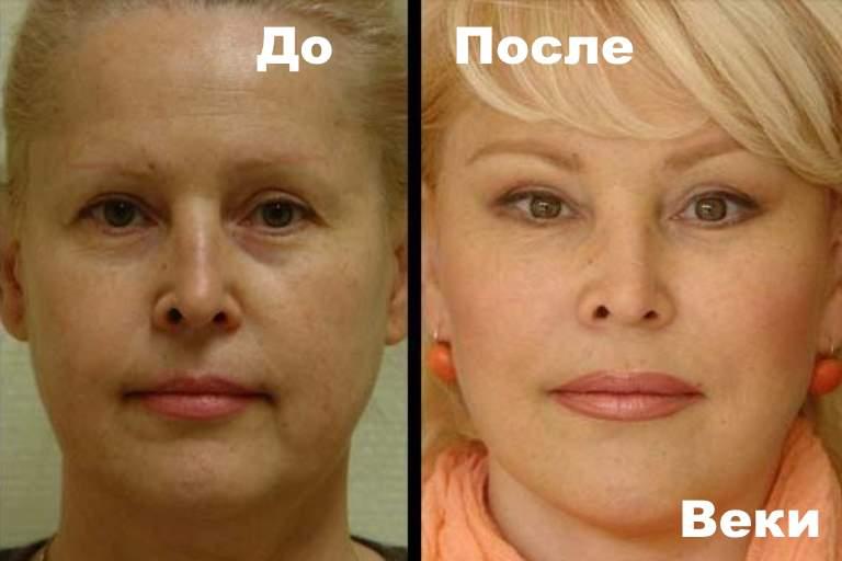 До и после липолифтинга губ