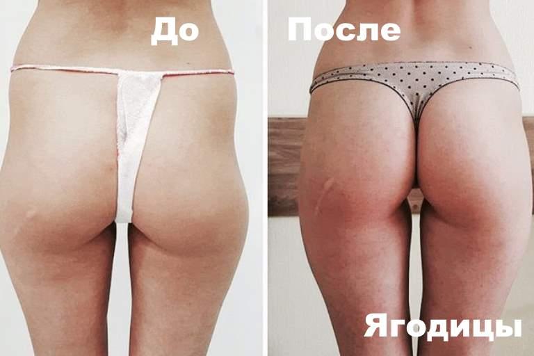 До и после липолифтинга ягодиц