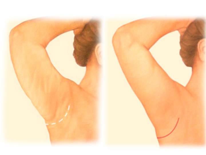 Виды операции по подтяжке кожи рук - Трансаксиллярная