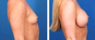 Фото до и после изменения груди