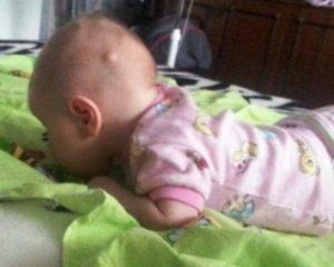 Возникновение атеромы у малыша