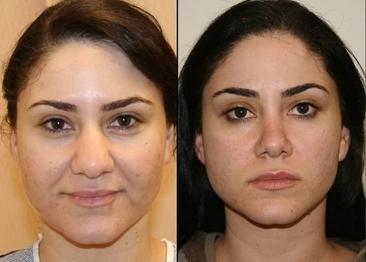 Фото пациента до и после ринопластики