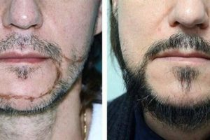 До и после пересадки волос