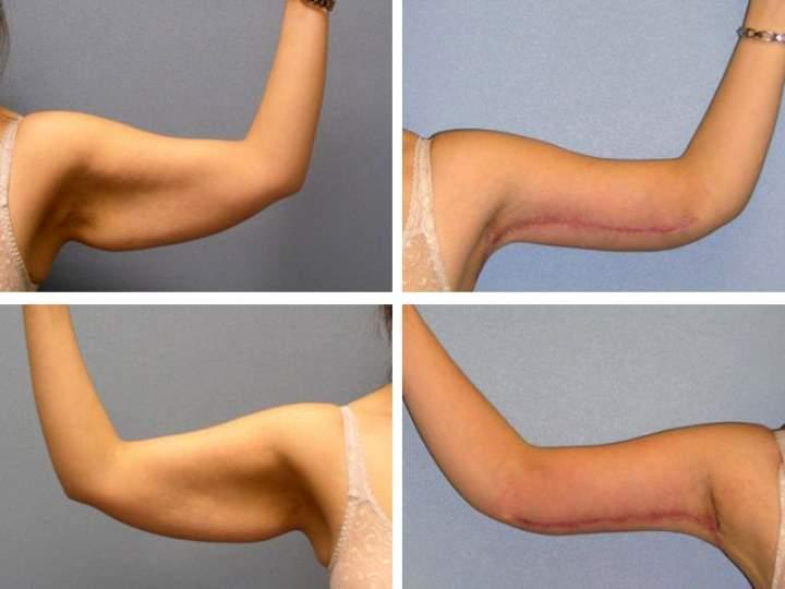 Показания для операции по подтяжке кожи рук
