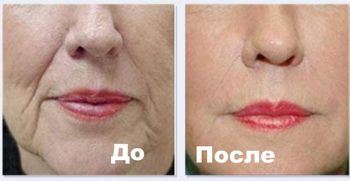 Фото 2 пациента до и после Плюреаля