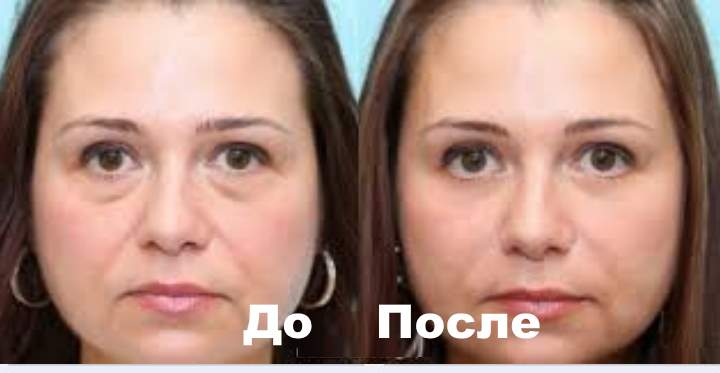 Фото 3 пациента до и после Плюреаля