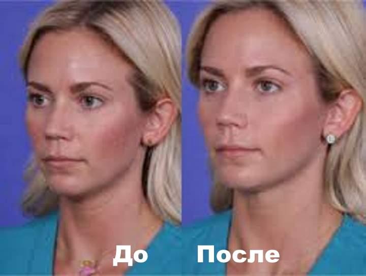 Фото 4 пациента до и после Плюреаля