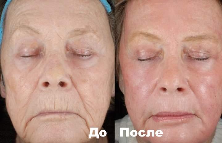 Фото 2 пациента до и после процедуры Бьютель