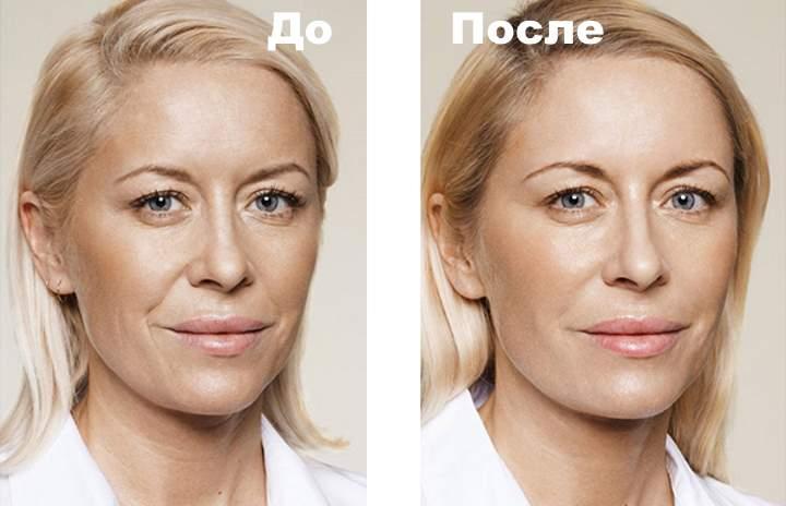 Фото 1 пациента до и после процедуры Бьютель
