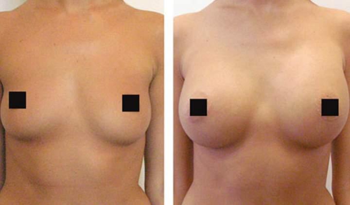 Фото 3 до и после изменения груди