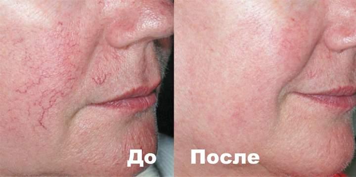 Фото 2 пациента до и после лечения от куперозв