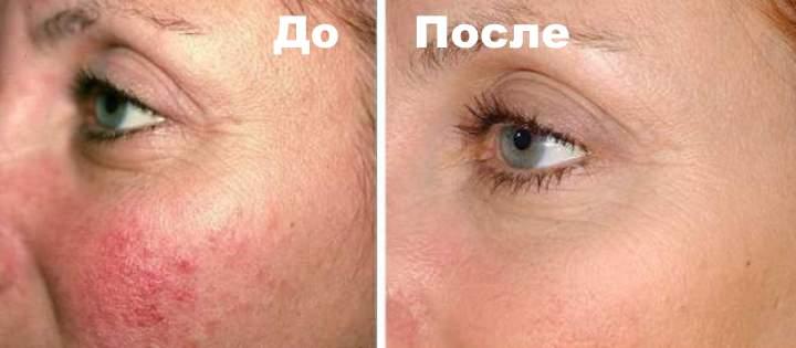 Фото 3 пациента до и после лечения от куперозв