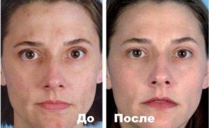 Фото 4 пациента до и после лечения от куперозв