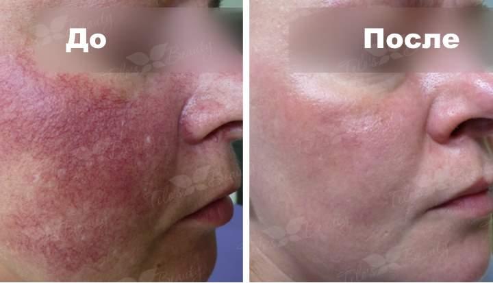Фото 1 пациента до и после лечения от куперозв