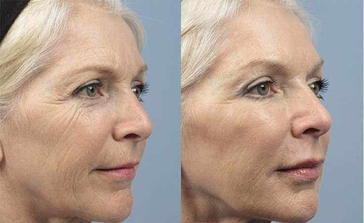 Женщина 55-ти лет