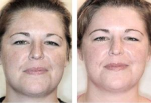 Фото пациента до и после пилинга