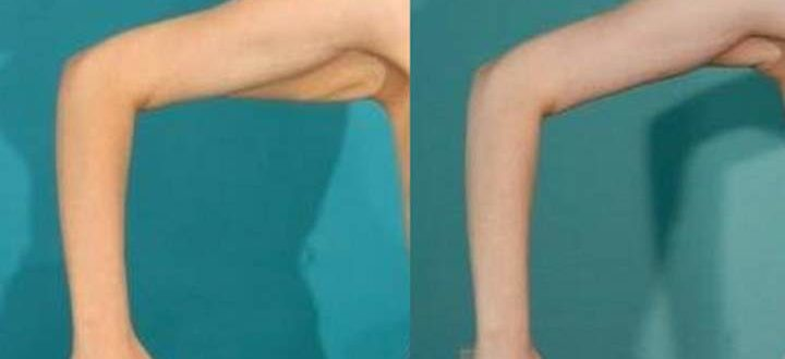 До и после операции подтяжке кожи